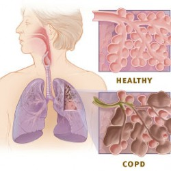 Copd_versus_healthy_lung